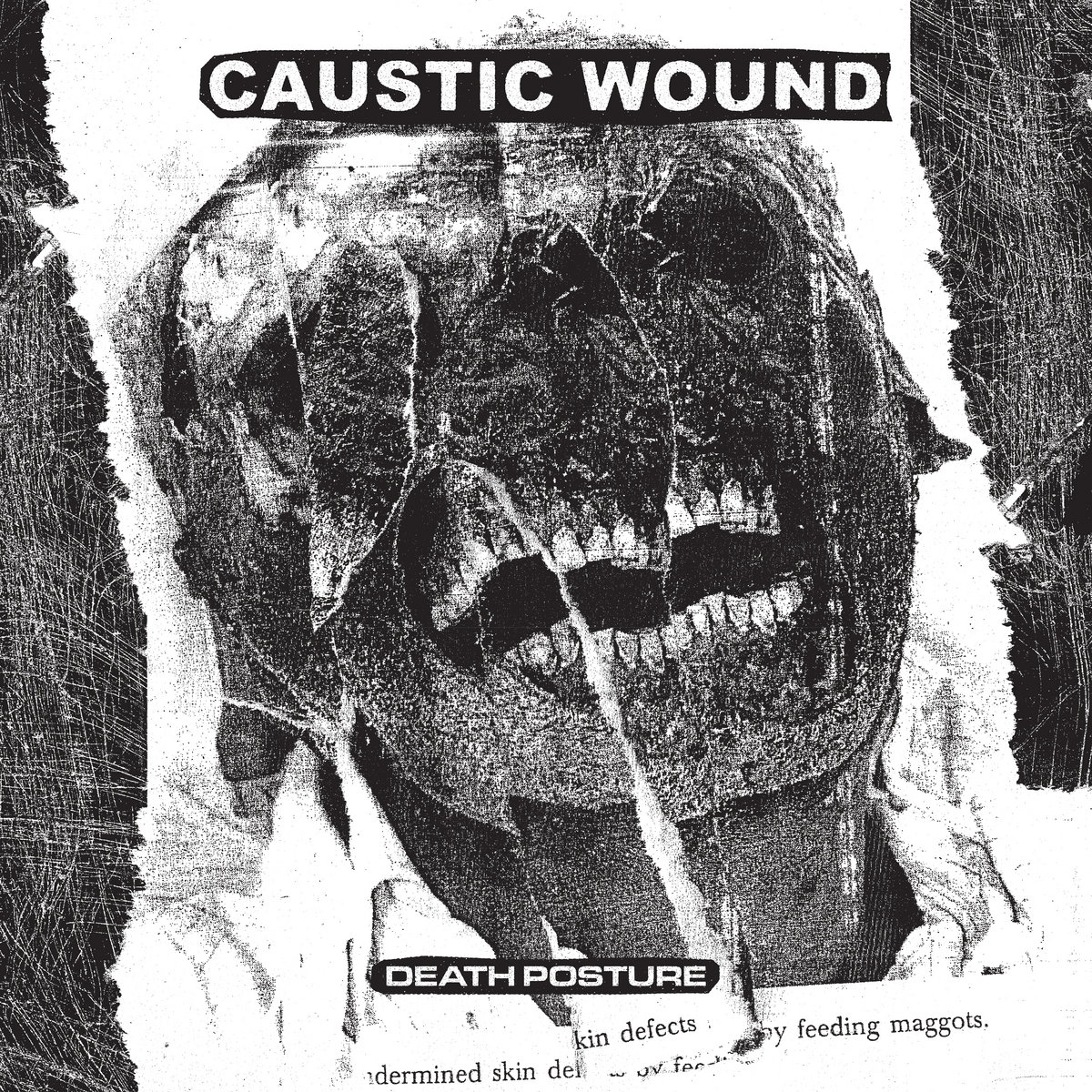 causticc_wound_death_posture_01